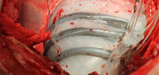 Engineers Develop Soft Robotic Sleeve to Help the Heart Beat